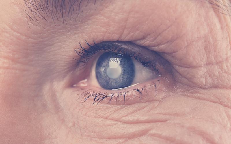 Glaucoma: falsedades y verdades