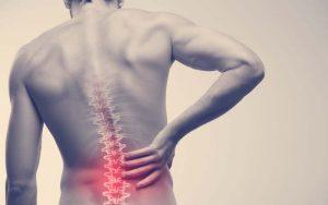 La ciática es un dolor en la parte baja de la columna